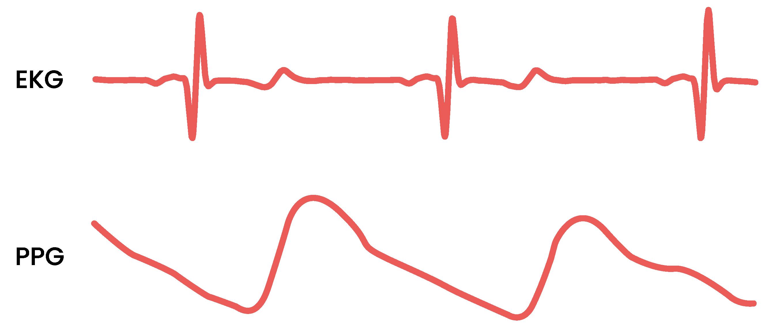 Två grafer visar skillnaden mellan en EKG-signal och en PPG-signal.