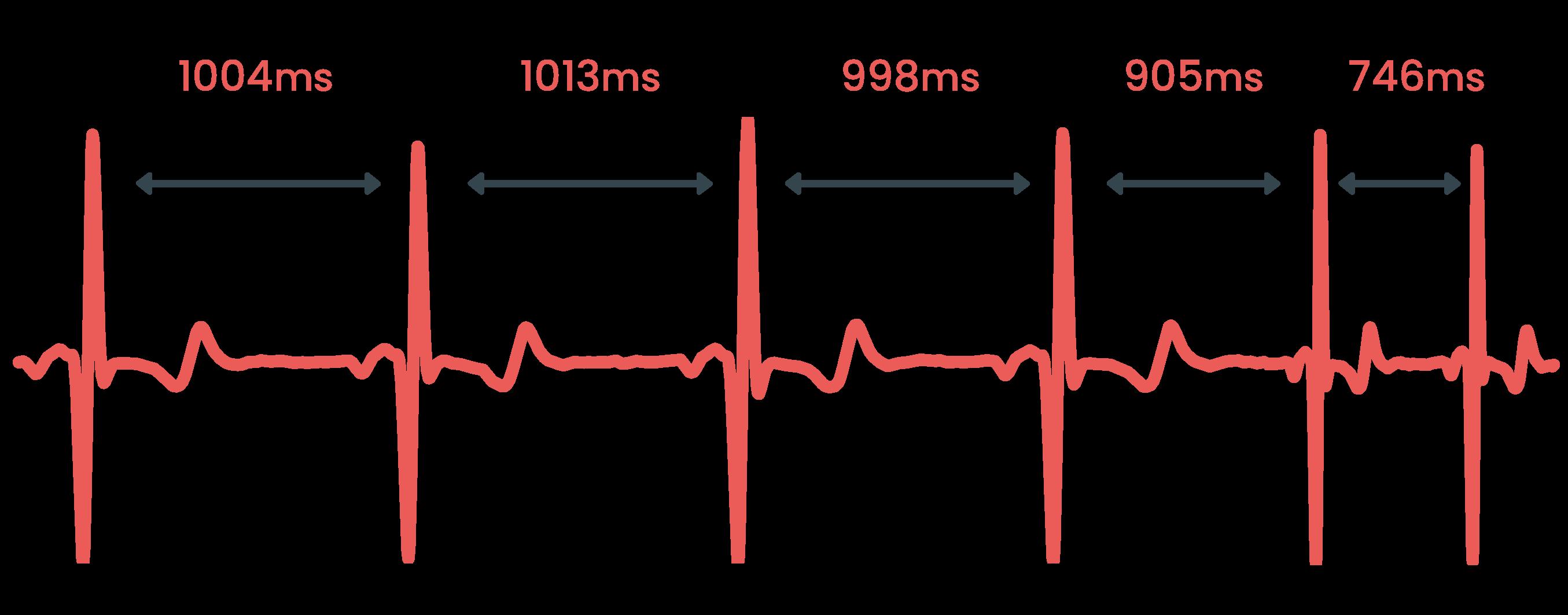 En EKG-signal med pilar som illustrerar hur hjärtfrekvensvariabilitet syns från slag till slag.